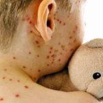 Casi di morbillo in aumento in Italia perché la gente non si vaccina