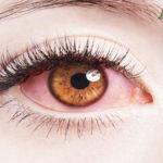 Coronavirus nelle lacrime di paziente positiva allo Spallanzani
