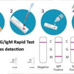 Test rapido COVID 19 come funziona e prezzo in farmacia